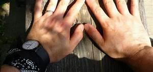Mittel Gegen Wespen Im Rolladenkasten : gicht hausmittel gegen gicht health pinterest gicht gicht hausmittel und hausmittel ~ Frokenaadalensverden.com Haus und Dekorationen