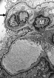 Electron Microscopy Showing Extensive Effacement Of