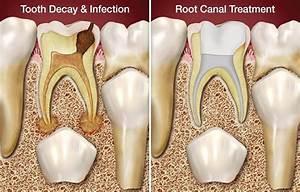 Burnaby Endodontics, Root Canals: 4800 Kingsway #359