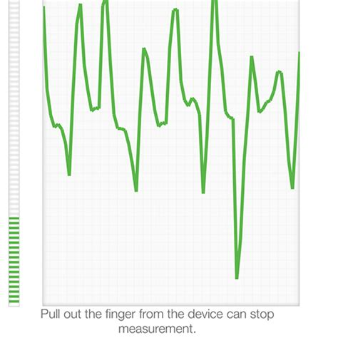 Amazon.com: iHealth Air Wireless Fingertip Pulse Oximeter