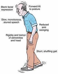 The Hallmarks Of Parkinson U0026 39 S Disease