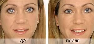 Массажер для лица от морщин подтяжка eye