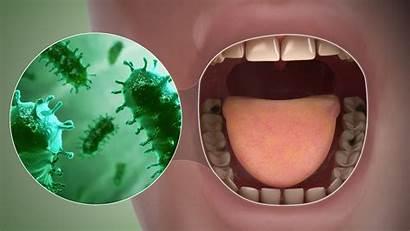 Breath Bad Symptoms Causes 3d Animation Treatment