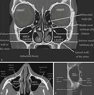 Best Sinus Anatomy - ideas and images on Bing | Find what you\'ll love