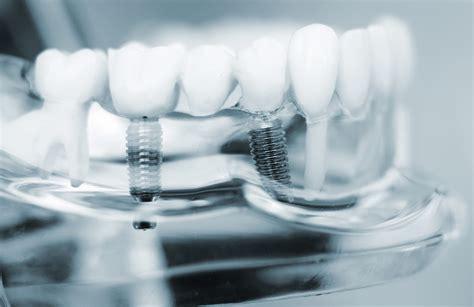 nw houston prosthodontics dental implants   expect