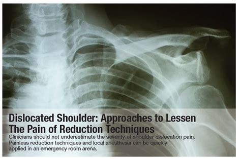 dislocated shoulder approaches  lessen  pain