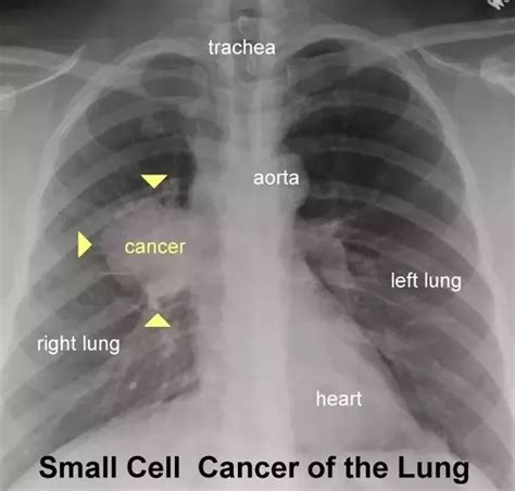 lung cancer lungs ray chest xray xrays rays pneumonia ct pleural effusion tumor fluid difference left cell radiology right between