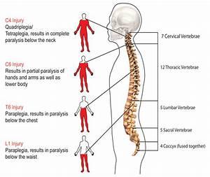 Paraplegia Injury