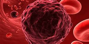 Researchers, Identify, A, Way, To, Stop, Cancer, From, Spreading