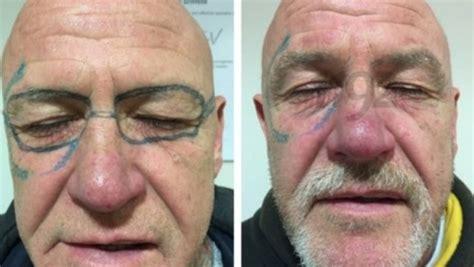 man  laser surgery  remove sunglasses tattooed   face  drunk stuffconz