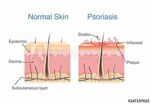 Normal Skin Layer And Skin When Plaque Psoriasis Signs And