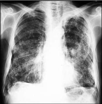 asbestos related pleural disease pulmonary disorders