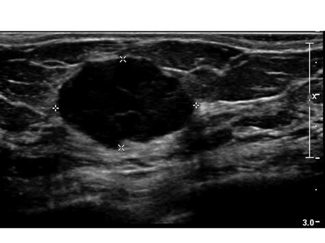 Breast Ultrasound Images Cme Screening Breast Ultrasound