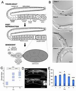 Aging Pathology In The C  Elegans Hermaphrodite Gonad A