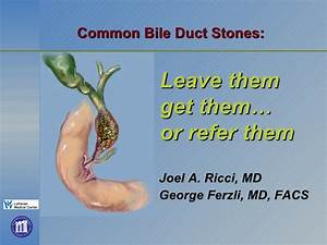 Common Bile Duct Stones: Leave Them Get Them or Refer Them