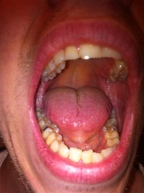 Mouth Cancer White Spot What Mouth Cancer Looks Like