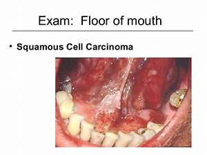 Oral cavity & oropharynx