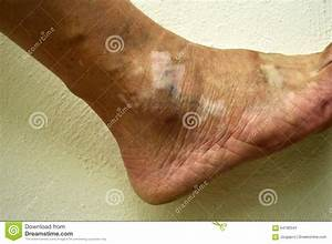 Human Ankle  With Condition Vitiligo  Stock Image