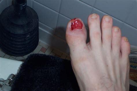 Missing Toe Nail