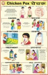 Since the symptoms of chickenpox include fever and fatigue along with ...  Chickenpox Integrative medicine