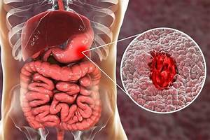 Visual Guide To Stomach Ulcers