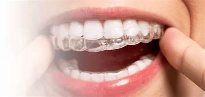 Invisalign Dental Clinic Edmonton