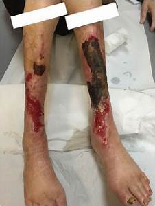 Observations Made On Three Patients Suffering From Ulcers