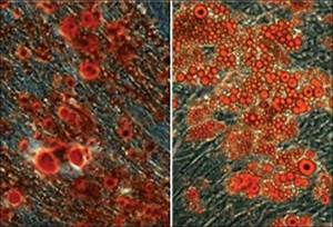 Osteogenic And Adipogenic Differentiation Of Cells