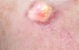 Abscess as related to Boil - Pictures