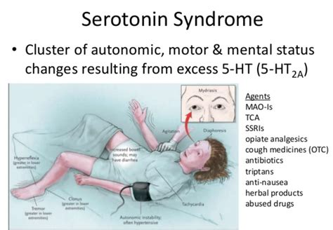 Serotonin Syndrome  Causes, Signs, Symptoms, Duration. Wicca Signs. Duloxetine Signs. Number 11 Signs Of Stroke. Leo Horoscope Signs. Notre Dame Signs Of Stroke. Morgan Signs Of Stroke. Third Grade Signs. Coke Signs