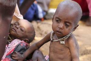 Somalia: As many as 200 Somali Children die every day from ...