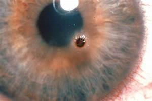 Advanced Family Eye Care: Corneal Abuse