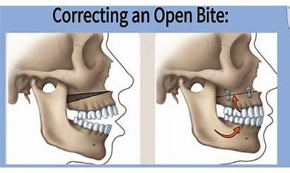 Jaw Surgery Bite Open Corrective Sleep Apnea