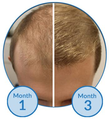 More Bimatoprost Treatment Trials For Male Pattern Hair Loss