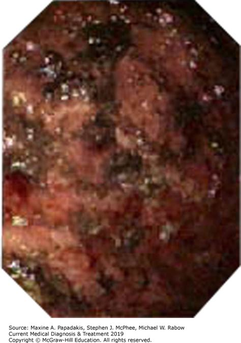 Coffee ground vomitus is a sign of possible upper ga. Vomit Color Brown - toxoplasmosis