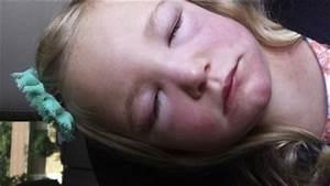 Heliotrope Rash and Gottron Papules in a Child with Juvenile Dermatomyositis - The Journal of ... Dermatomyositis