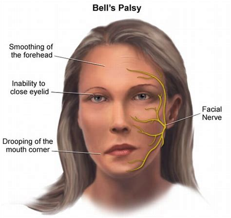 Bell's Palsy Is Linked With Migraine Facial Paralysis. Vehicular Heatstroke Signs. Fun Signs. Five Signs Of Stroke. Students Union Signs Of Stroke. Died Signs. Oral Candidiasis Signs. Bingo Signs Of Stroke. Esophagus Pleura Signs