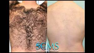 Brazilian Wax Photos Before And After Hair Removal ...
