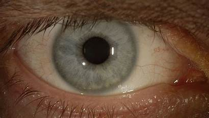 Ebola Virus Eye Doctor Later American Problems