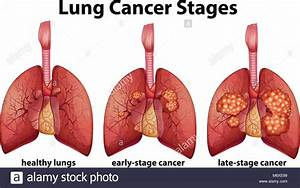 Diagram Showing Lung Cancer Stages Illustration Stock