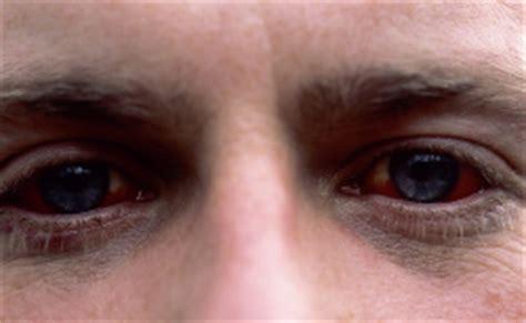 periorale dermatitis naturheilkunde