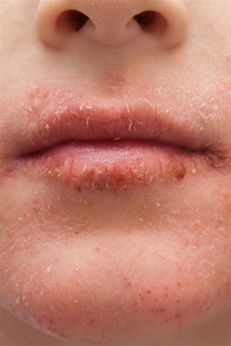 Dry skin around the mouth: Causes, treatment, and remedies