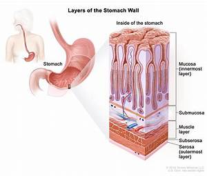 Gastric Cancer Treatment  Pdq U00ae  U2014patient Version