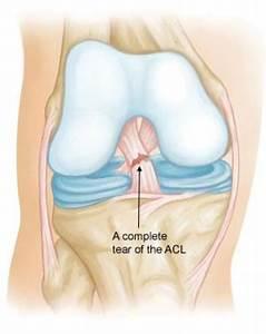 Anterior Cruciate Injury And Recon