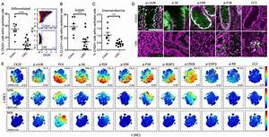 Mass Cytometry Analysis Of Human Colorectal Cancer