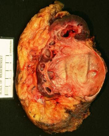 Hydronephrosis Kidney Pathology