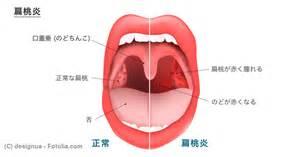 喉 の 奥 赤い でき もの