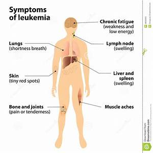 Symptoms Of Leukemia  Blood Cancer Stock Vector