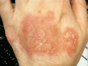 hi, i have a red rash on back of my hand that is incredibly