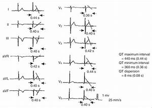 Figure Measurement Of Qt Interval And Qt Dispersion  In